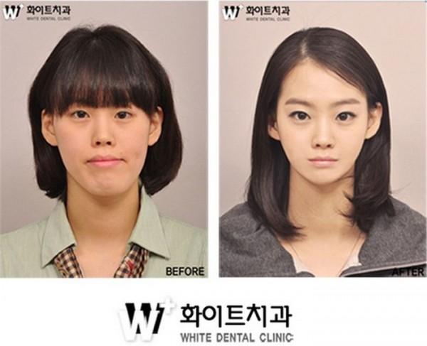 韓国の整形14