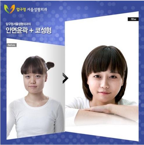 韓国の整形40