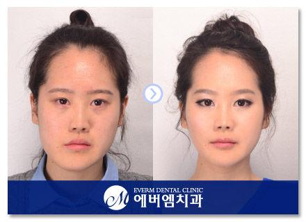 韓国の整形41