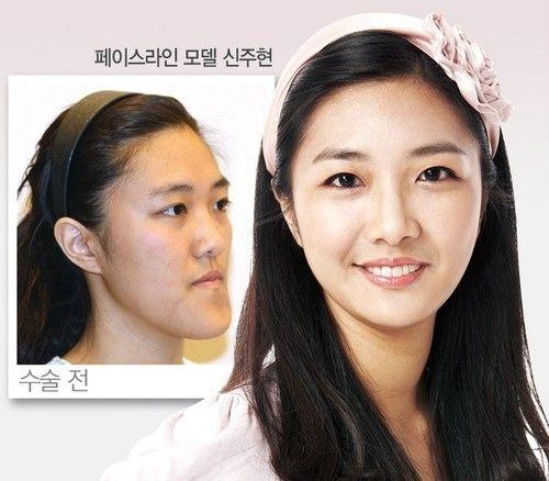 韓国の整形43