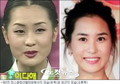 韓国の整形59