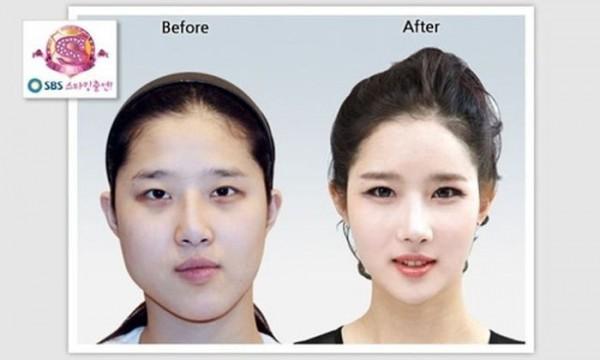 韓国の整形90